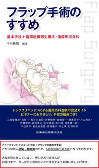 フラップ手術のすすめ - 中舘歯科診療所のブログ:あとみよそわか
