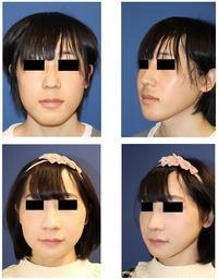 中顔面短縮術(上顎LeFortⅠ型骨切術+下顎矢状分割術),下顎縁スティック骨切術  術後約半年 - 美容外科医のモノローグ