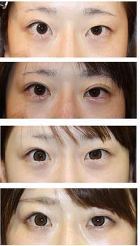 日本初  新しい二重形成術: 切らない かつ 糸も一切使わない 二重形成術 : 高周波二重形成術  術後1か月半 - 美容外科医のモノローグ