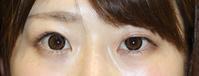 左眼 高周波二重形成術 術後1か月半   左眼 眼瞼挙筋短縮術 - 美容外科医のモノローグ