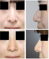 糸による鼻形成 (MISKO鼻) , 鼻根ヒアルロン酸(クレヴィエル) - 美容外科医のモノローグ