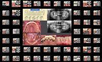 2018臨床歯科を語る会 - 土竜のトンネル