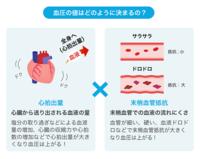 血圧を下げる ④ - ― Metamorphose ―