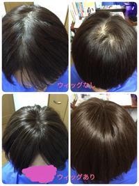 医療用ウィッグ☆外すタイミング - 三重県 訪問美容/医療用ウィッグ  訪問美容髪んぐのブログ