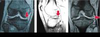 半月板損傷 その4診断 - 横浜市南区弘明寺整形外科リハビリ「原整形外科医院」のブログ
