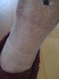 木曜デイと足のむくみ - どうしちゃったんだよ、お母さん。