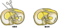 半月板損傷 その5予防と治療 - 横浜市南区弘明寺整形外科リハビリ「原整形外科医院」のブログ