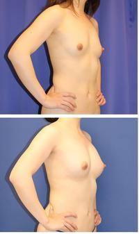 脂肪移植豊胸 一年に3回  最終施術より術後半年  (ベイザー脂肪吸引,ピュアグラフト使用) - 美容外科医のモノローグ