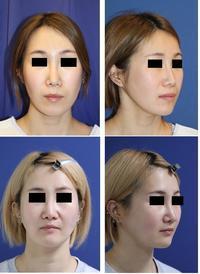 他院頬骨骨切術術後プレート抜去 & 中顔面短縮術(上顎LeFortⅠ型骨切術+下顎矢状分割術)術後約半年 - 美容外科医のモノローグ