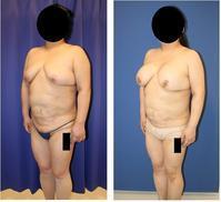 ベイザー二の腕脂肪吸引、ベイザー上腹部脂肪吸引、豊胸(500cc シリコンバッグ)に脳で脂肪吸引、上腹部脂肪吸引、豊胸(500㏄ シリコンバッグ) 術後約半年 - 美容外科医のモノローグ