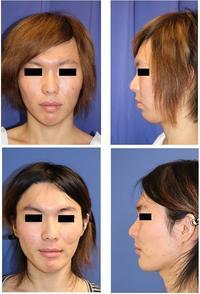 上下セットバック(歯槽骨区域骨切術),口角挙上(内側法)術後約半年再診 - 美容外科医のモノローグ