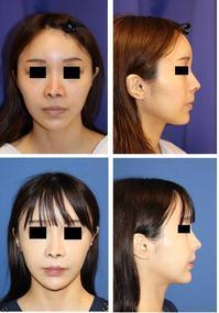 頬骨V字骨切術,他院鼻翼基部プロテーゼ抜去 ,鼻翼基部アパタイト形成術  - 美容外科医のモノローグ