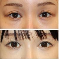 目の下のクマ治療 : ヒューマンコラーゲン - 美容外科医のモノローグ