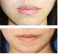 上下口唇縮小術術後役7年再診時 - 美容外科医のモノローグ