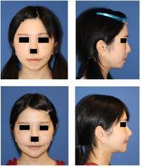 中顔面短縮術(上顎LeFortⅠ型骨切術+下顎矢状分割術),あご先骨切前方移動術術後約1.5か月再診時 - 美容外科医のモノローグ