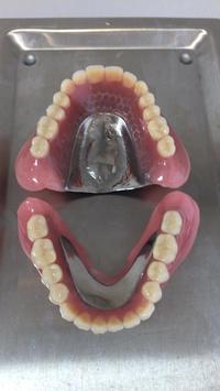 上下柔らかい義歯完成 - メグデンブログ