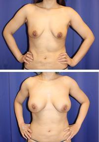 脂肪移植+豊胸バッグ(モティバ340cc) 術後 約1年再診時 - 美容外科医のモノローグ