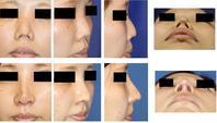 他医師鼻中隔延長後術後変形に対する修正術,鼻尖縮小術,鼻根縮小術,鼻孔縁挙上術,婦人科軟部組織移植術 - 美容外科医のモノローグ