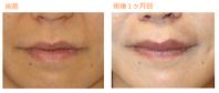 人中短縮術(内側法)術後1ヶ月目 - Dr勝間田のブログ