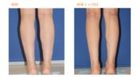 フクラハギを細くする手術(LDDN法)術後1ヶ月目 - Dr勝間田のブログ