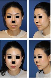 HIFU:High intensity focuced ultrasound (高密度超音波によるフェイスリフティング治療)施術後半年再診時 - 美容外科医のモノローグ