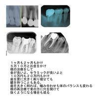 あなたならどうする - 自然歯科診療所