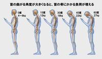 姿勢が悪いと首に頭の重さの数倍の負荷がかかる - 健康生活