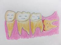 クラ吹きと親不知 ①〜症状〜 - うたう葦〜クラリネット吹き菊池澄枝のblogです♪