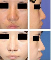 レーザー鼻尖縮小術 術後約一年 ,鼻背部皮切り術 術後 約半年再診時 - 美容外科医のモノローグ