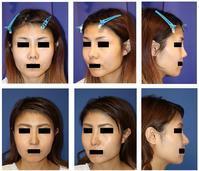 他院鼻プロテーゼ抜去術、鼻尖縮小(クローズ法)、鼻中隔延長術、鼻孔縁挙上術、鼻孔縁延長術、婦人科軟部組織移植術 - 美容外科医のモノローグ