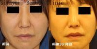 人中短縮術 - Dr勝間田のブログ