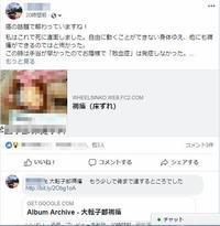 FB(フェイスブック)に褥瘡(床ずれ)の実体験をアップしたら! - なんじゃろ集 福岡