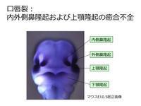 口唇口蓋裂(こうしんこうがいれつ)の頻度は高い - 大隅典子の仙台通信