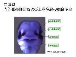 口唇口蓋裂(こうしんこうがいれつ)はどのようにして生じるのか - 大隅典子の仙台通信