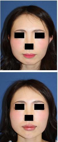 あご先ヒアルロン酸注入、口唇ヒアルロン酸注入 - 美容外科医のモノローグ