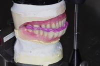2018/10/25  とほほ<職人(歯科技工士)のお仕事> - 職人(歯科技工士)のお仕事-東京下町の歯科技工所のBlog-