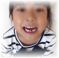 6歳娘、とうとう乳歯が抜けた! & 乳歯ケース購入☆ - ARTY NOEL