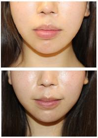 上下口唇縮小術術後約半年再診時 - 美容外科医のモノローグ
