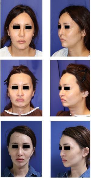 中顔面短縮術(上顎LeFortⅠ型骨切術+下顎矢状分割術),あご先骨切前方移動術 術後約一年半年,あご先ダーマライブ除去術後、ロアーリフト(SMASリフト)術後約半年 - 美容外科医のモノローグ