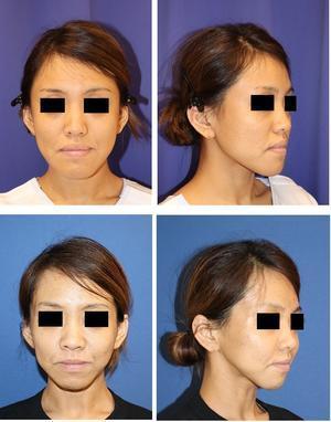 中顔面短縮術(上顎LeFortⅠ型骨切術+下顎矢状分割術) 術後約4か月 - 美容外科医のモノローグ