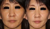 HIFU - しらゆり金曜担当医の美容皮膚科ブログ