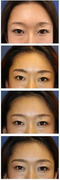 医療アートメイク眉 - 美容外科医のモノローグ