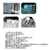 安易に歯の神経を取らない - 自然歯科診療所