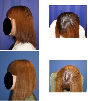 後頭部頭蓋アパタイト形成術  術後約半年 - 美容外科医のモノローグ