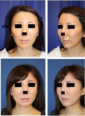 頬骨再構築法 術後約1年 、 あご下アキュリフト+脂肪吸引 、あご下ミントリフト 術後約半年再診時 - 美容外科医のモノローグ