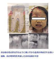 歯の特殊性を考慮した治療が大切 - 自然歯科診療所