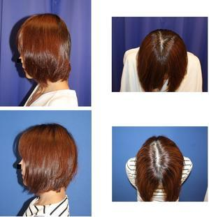 頭蓋形態修正術 : 頭蓋レジン - 美容外科医のモノローグ