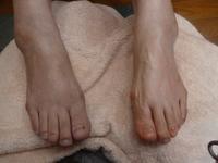 むくみ取り - 鶴岡市【ビワキュー・足つぼ・ボディケア・よもぎ蒸し】自然療法セイノ