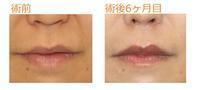 人中短縮術(内側法)術後6ヶ月目 - Dr勝間田のブログ