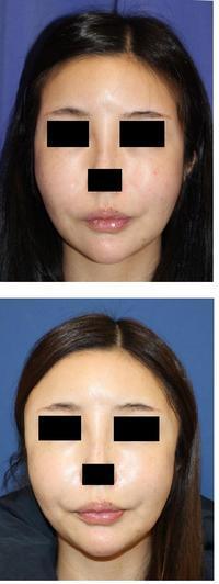 鼻翼基部プロテーゼ,こめかみプロテーゼ術後3か月 - 美容外科医のモノローグ